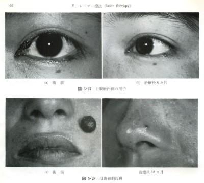 レーザー治療による黒子(上眼まぶた内側)と母斑細胞母斑の治療例です。