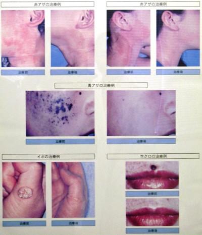 各種レーザーの治療例 上段:赤アザ 中段:青アザ 下段:イボ、ホクロ