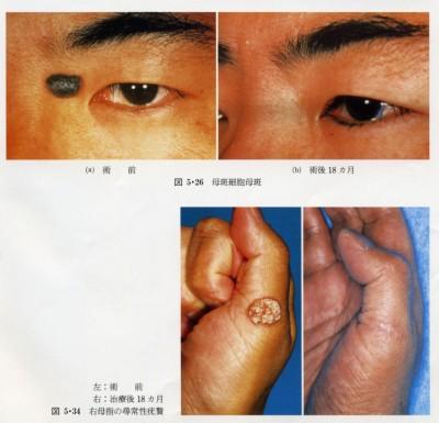 母斑細胞母斑の治療例(上) 右母指の尋常性疣贅の治療例(下)