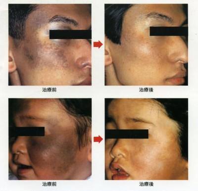 太田母斑のレーザー治療例